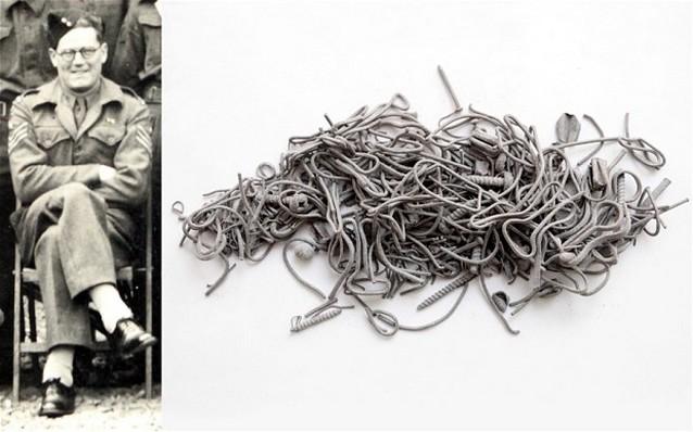 shrapnel 2372989b В теле ветерана Второй мировой войны обнаружили 170 граммов шрапнели